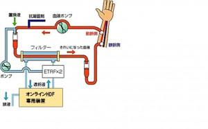 OnHDF図